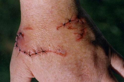 Hình ảnh một vết cắn của rồng nam mỹ phải khâu
